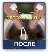 токс3
